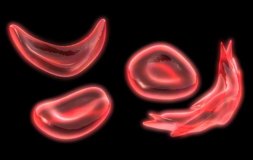 A RBC SICKLE CELL 3